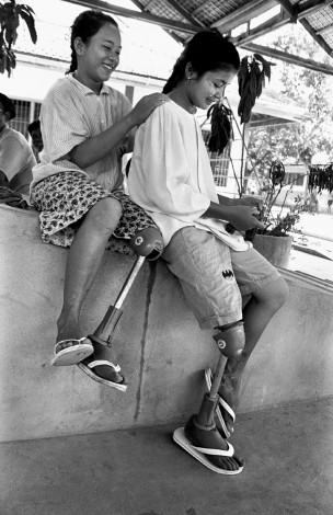 Twee meisjes in het orthopedisch centrum van het ICRC (Int. Rode Kruis) in Battambang, Koninkrijk Cambodja, 1997